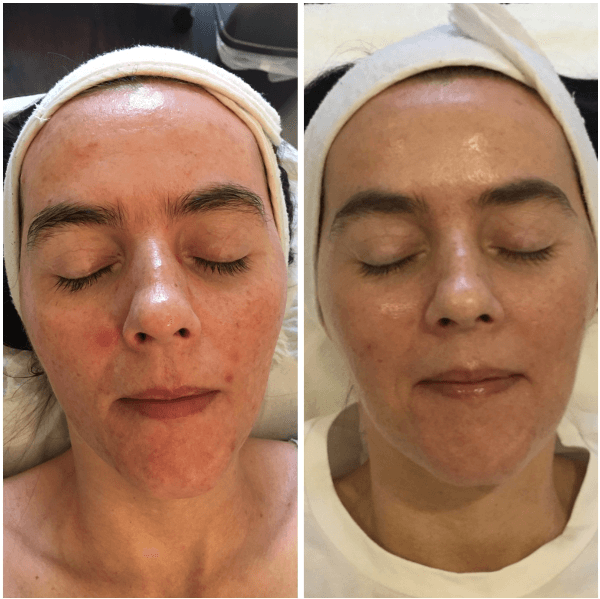 acne-4
